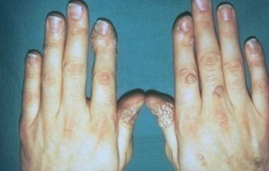 warts-hands-adult